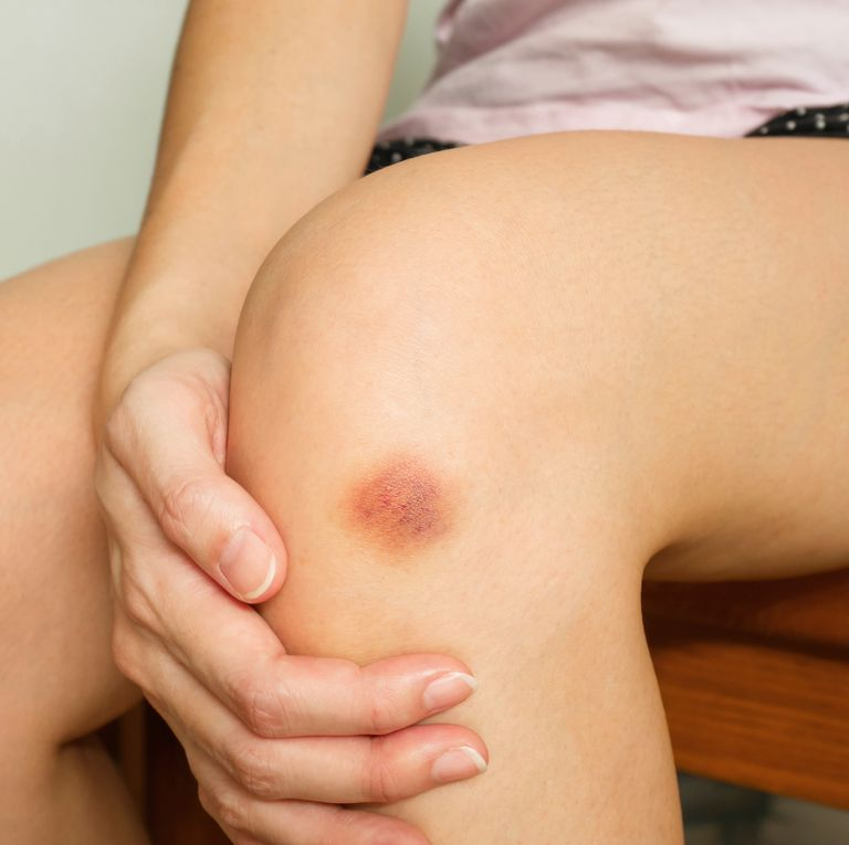 womans-got-a-purple-bruise-royalty-free-image-985558398-1549995630-2019-03-28-08-59.jpg